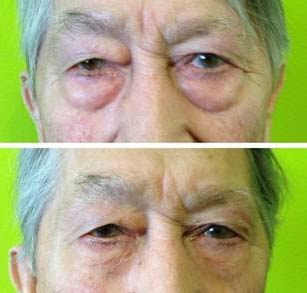 Jeunesse Instantly Ageless Picture